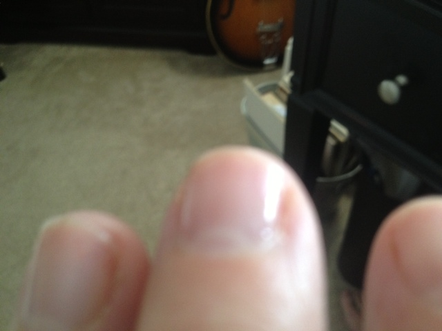 Okay, here's what the nail polish looks like on my fingernails.  I know they kind of look like my toes, but their not.  My toes are shorter and fatter.  I kind of like clear nail polish because when it chips off, you don't really notice.  Who do I even bother with the clear?  Well, it's the kind of thing one contemplates on National Bleh Day.